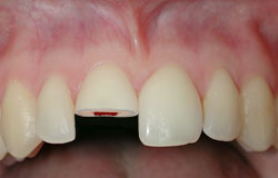 שבר אמיל דנטין עם מעורבות מוך השן
