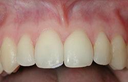 שבר שן קל – שבר קצה השן שמערב את האמיל של השן בלבד.