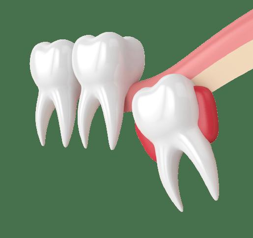 עקירת שן